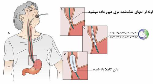 اتساع و ازوفاگومیوتومی برای درمان آشالازی