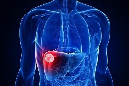 علائم بیماری هپاتیت سی در افراد مختلف