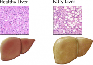 normal_and_fatty_liver